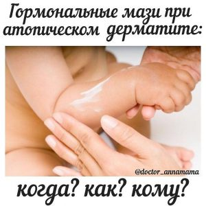 Все про атопический дерматит, AnnaMama